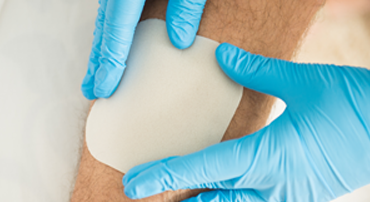 Advanced Wound Dressings
