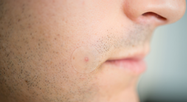 Acne Treatment Dots